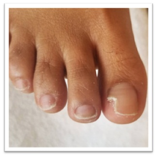 Acrylic Toenails Before and After 1